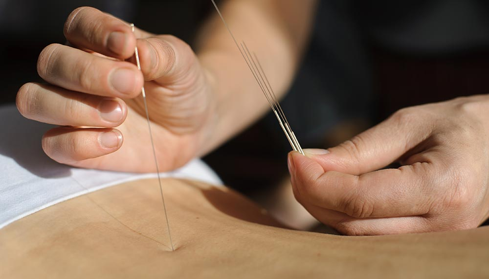 castleford-physiotherapy-acupuncture